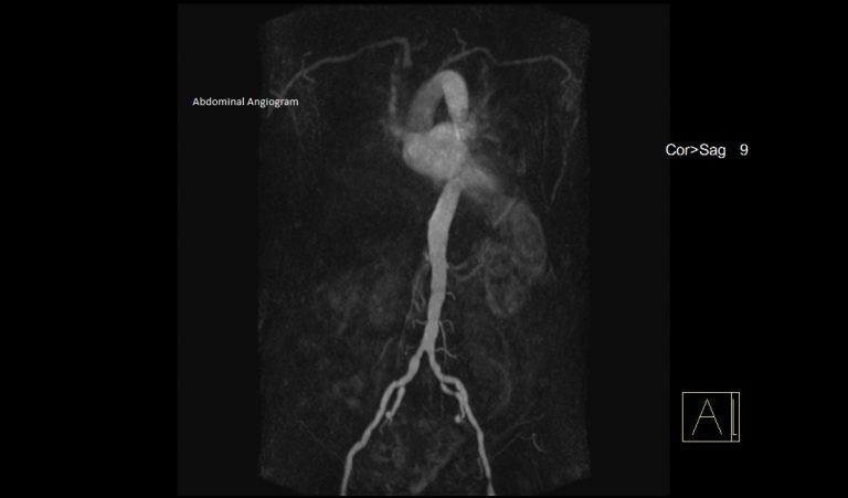 Abdo Angiogram