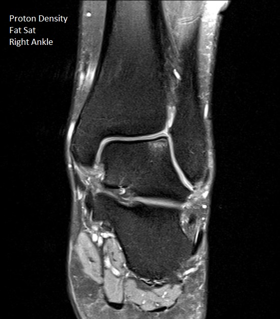 PDfs Coronal Right Ankle