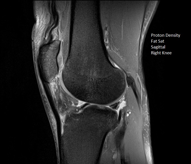 PDfs Sag Right Knee