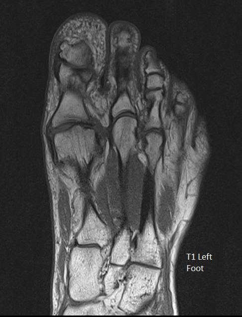 T1 Left Foot
