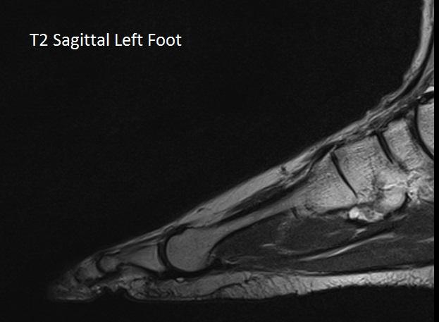 T2 Sag Left Foot