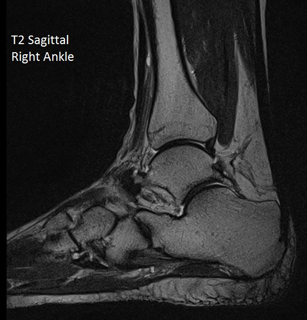 T2 Sag Right ankle