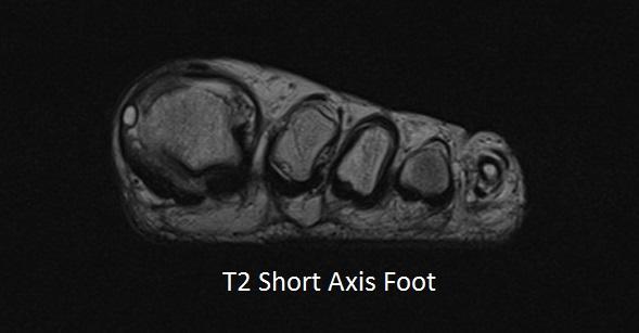 T2 Short Axis Left Foot