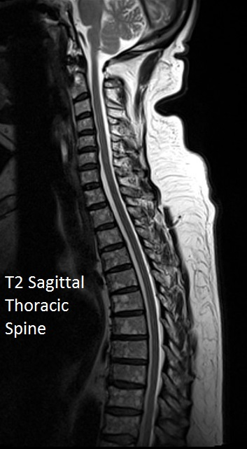 T2 Thoracic Spine-2