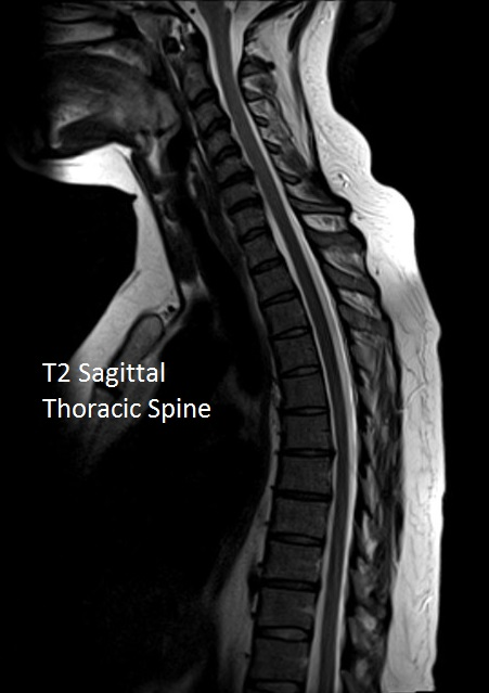 T2 Thoracic Spine